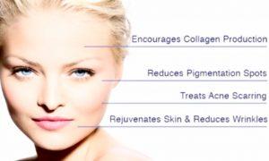 Microneedling Vorteile Hautverjüngung Faltenglättung