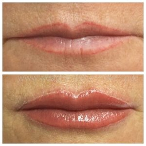 Permanent Make Up Berlin Lippen-Kontur