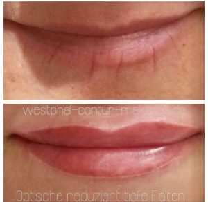 Faltenglättung Berlin permanent Make Up Lippen