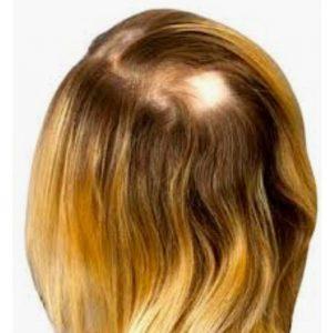 Haarausfall Alopezie Männer