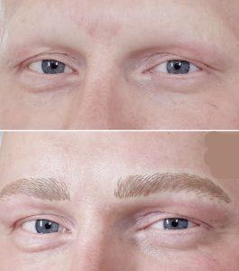 Alopezie Haarausfall Mann Permanent Make Up Korrektur