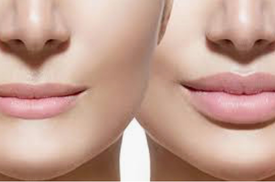 Lippenvergrösserung