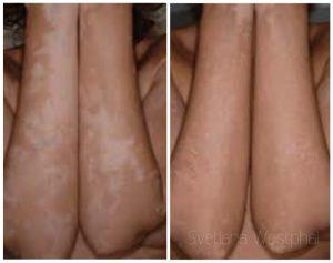 Weißfleckenkrankheit (Vitiligo): kosmetische, dauerhafte Korrektur durch Camouflage Permanent Make Up Technik