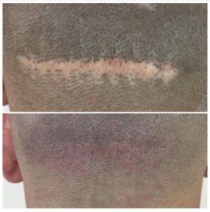 Narben Retuschierung, Long Time Liner Camouflage Pigmentieren, Haarverdichtung