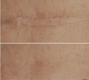 Medizinisches Permanent Make Up, Narben Retuschieren